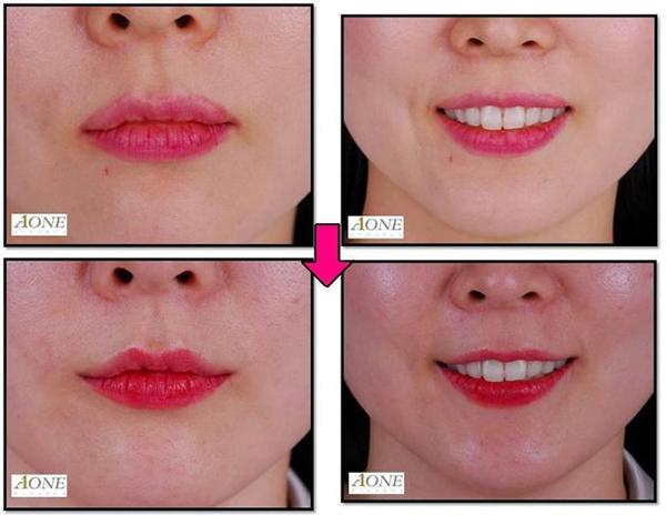 Smile Lipt: la cirugía que cambia tu sonrisa como la del Guasón