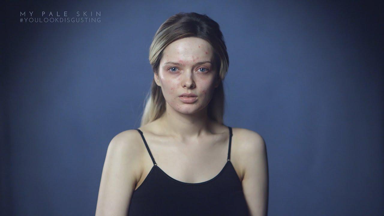 #YouLookDisgusting, la campaña online contra el bullying que incentiva a personas con acné a mostrar su rostro sin maquillaje