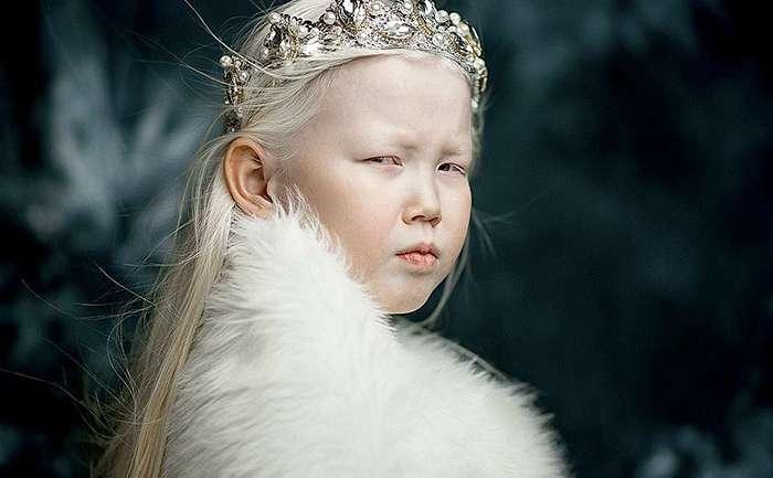 Nariyana, la niña albina de ocho años que es furor en las redes sociales
