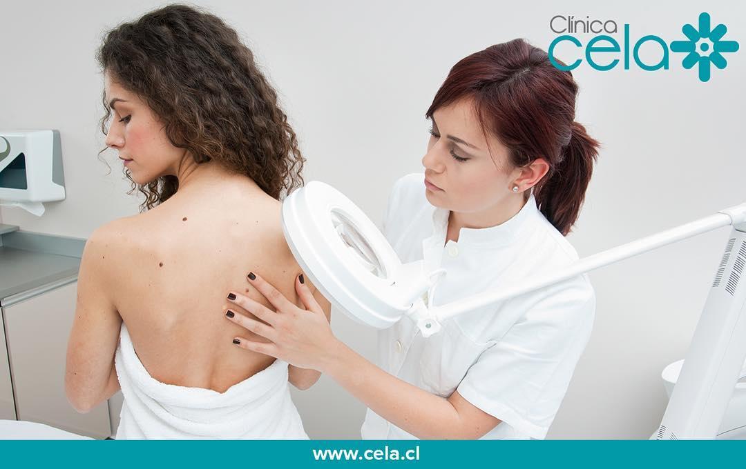 ¿Cómo eliminar los rollitos y tonificar la dermis en Clínica CELA?