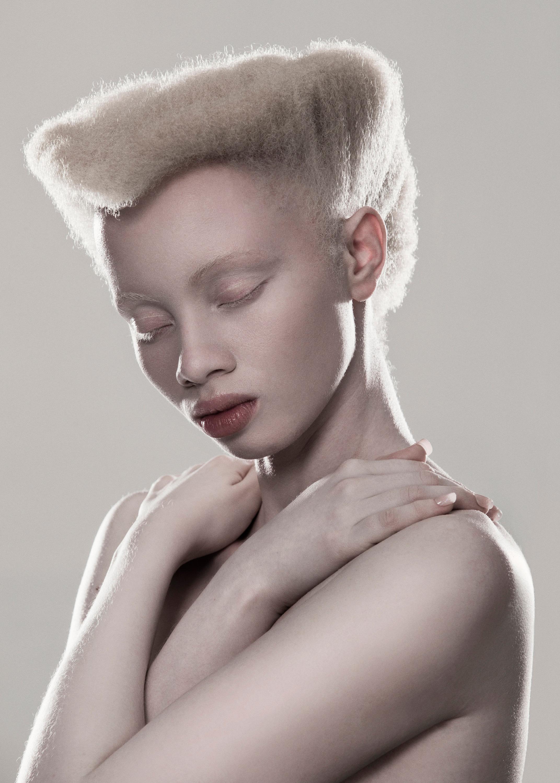 Shaun Ross y Thando Hopa: la realidad de los modelos africanos con albinismo