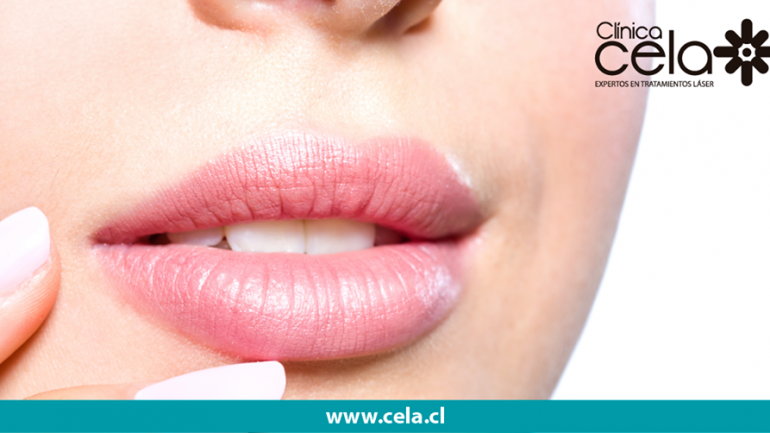 Los beneficios de las nuevas tecnologías de depilación con Clínica Cela
