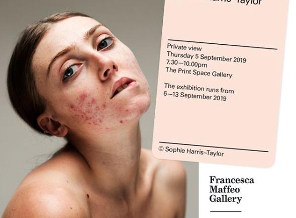 La campaña Epidermis de la fotógrafa Sophie Harris-Taylor